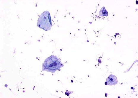 Orina con células uroteliales y escamosas. Citopreparación.May-Gruenwald Giemsa ( MGG )