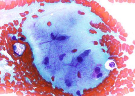 Células estromales con núcleo oval o elongado embebidas en abundante sustancia fibrilar intercelular