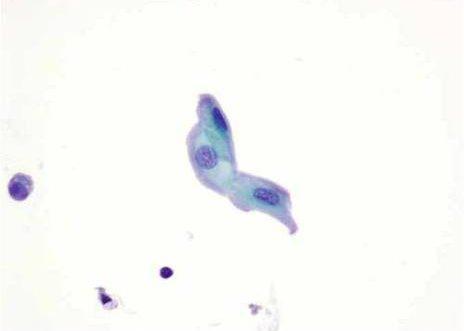 Célula uroteliales normales formas ligeramente elongadas. Papanicolaou