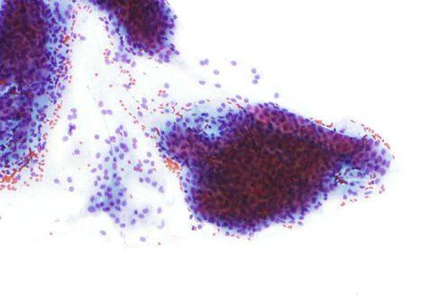 Placa de células parabasales en una muestra atrófica. El citoplasma de algunas células ha degenerado presentando algunos nucleos libres en el extendido.
