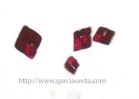 Cristales de Oxalato en líquido de lavado bronquial.