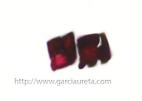 La identificación de cristales de oxalato en muestras citológicas puede ser la primera pista de la presencia de Aspergillus.