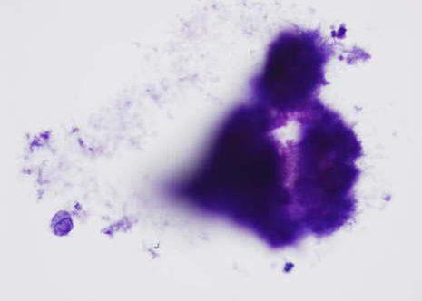 Colonias de actinomyces son organismos filamentosos sin inflamación significativa.