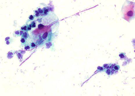 Muestra cervical con esporas y pseudohifas con ligera inflamación en infección por Cándida Albicans.