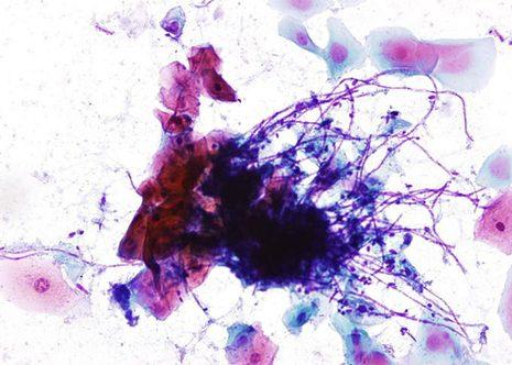 Hifas de Cándida formando un enredado sobre una placa de células escamosas. Se aprecian algunas esporas entre las hifas.