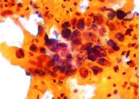 Carcinoma Escamoso. Celulas anormales junto con celularidad inflamatoria.