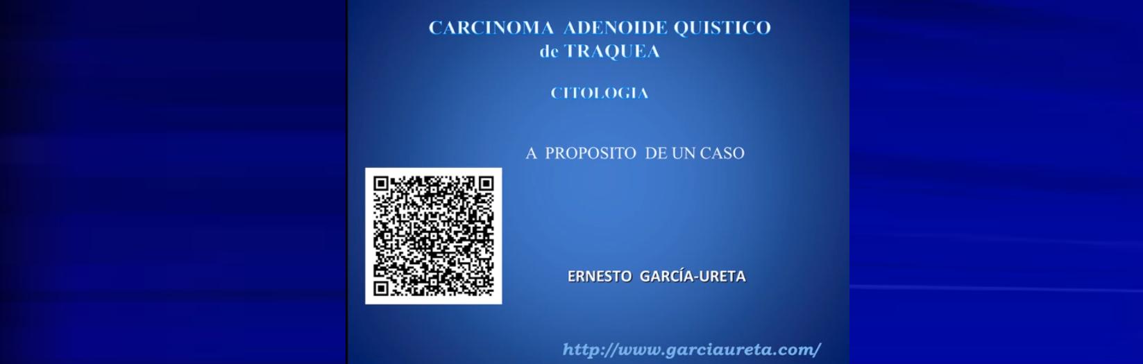 Carcinoma Adenoide Quistico