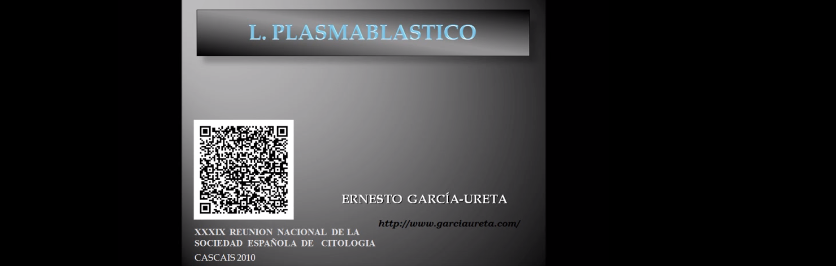 Linfoma Plasmablástico