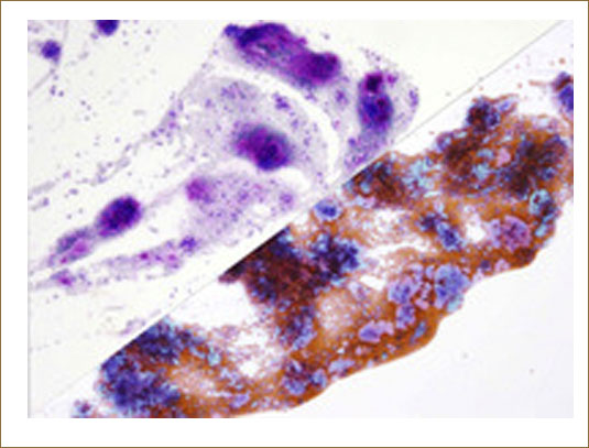 Fine needle aspiration cytology in a case of pleomorphic adenoma of the parotid gland