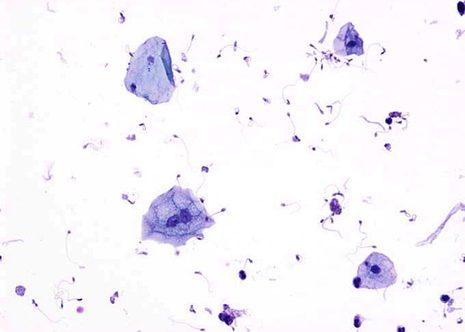 Orina con células uroteliais y escamosas. Citopreparación. May-Gruenwald Giemsa ( MGG )