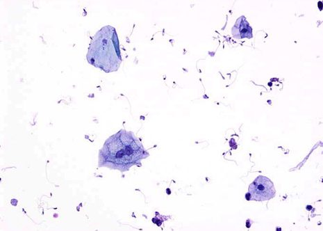 Urothelial and squamous cells in normal voided urine. Cytospin preparation. May-Gruenwald Giemsa ( MGG ) stain