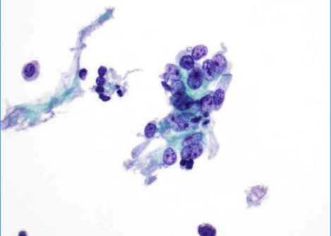 Cluster of cells with moderate cytoplasm, rounded nuclei and prominent nucleoli.