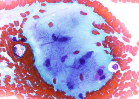 Células estromales con núcleo oval ou elongado embebidas en abundante substancia fibrilar intercelular.