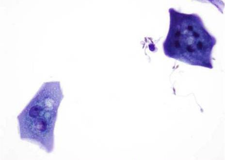 Urothelial cells with prominently vacuolated cytoplasm. ( MGG ) stain
