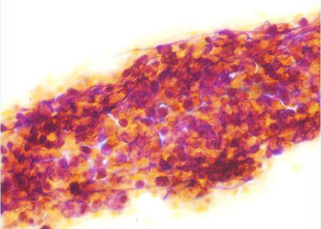 Agreagado de células pequenas con escaso citoplasma, pleomorfismo e alta relación núcleo-citoplasma.