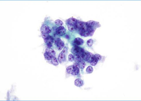 Irregular group of moderately pleomorphic glandular cells.