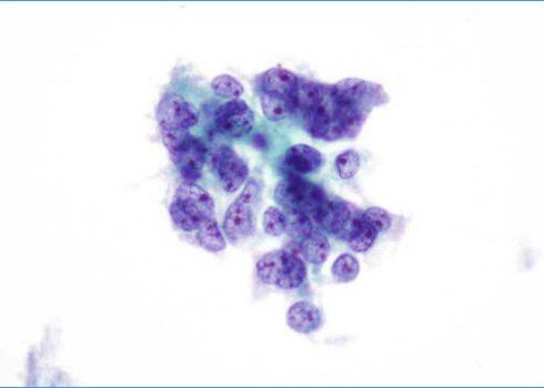 Grupo irregular de células glandulares con moderado pleomorfismo.