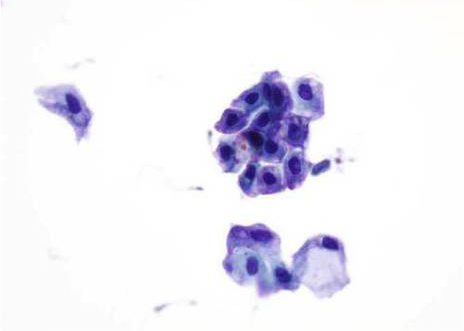 Reactive urothelial cells. Two clusters of benign, degenerated urothelial cells, the nuclei vary in size and are hyperchomatic. Papanicolaou stain.