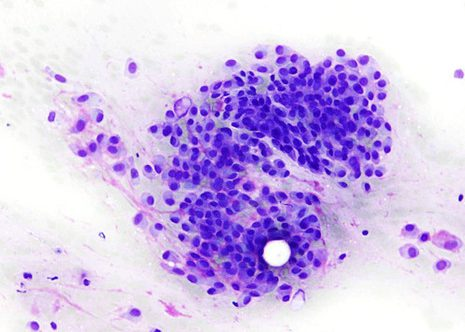 Some cells shows characteristic plasmacytoid-appearing cells with eccentrically placed nuclei dense cytoplasm and distinct cytoplasmic borders.