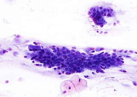 Placa de células columnares citoplasmas ben definidos con imaxe en panal.
