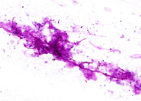 Budding yeasts and pseudohyphae of Candida Albicans. Esophageal brushing PAS stain