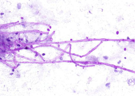 Characteristic branching hyphal fragments with septa. Esophageal brushing Papanicolaou stain