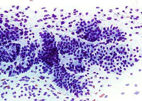 Núcleos nús en proximidade de grupos endocervicais.