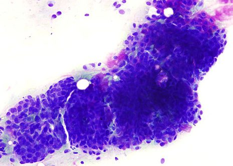 Epithelial cell predominance the degree of nuclear pleomorphism here non suggested malignancy.