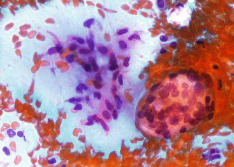 Algunhas células epiteliais pequenas e fragmentos de estroma mixoide.