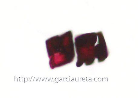 A identificación de cristales de oxalato en mostras citolóxicas pode ser a primeira pista da presenza de Aspergillus