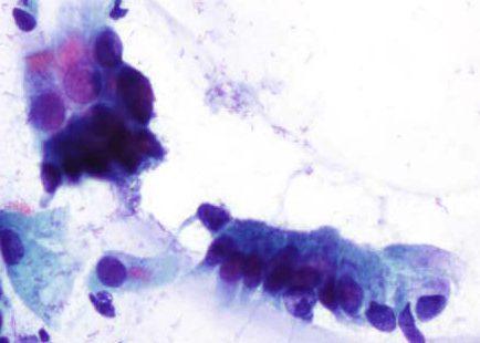 Células columnares endocervicais con barra terminal e cilios.