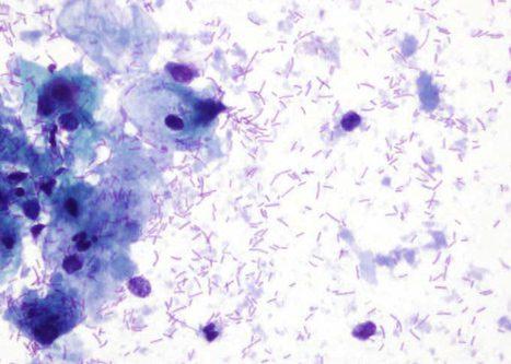 Mostra con citolise bacteriana con células intermedias e núcleos nús.