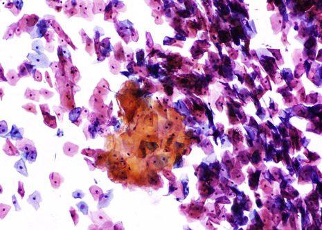 Escamas anucleadas descamadas das capas superficiais de epitelio escamoso queratinizado.