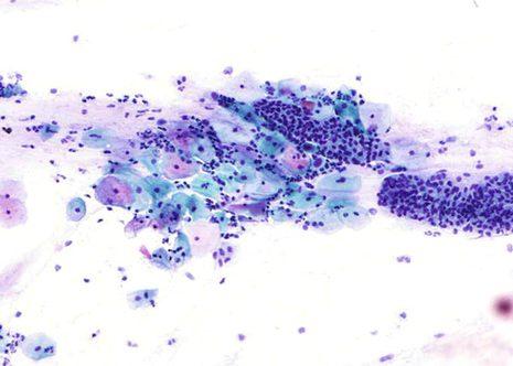 Mostra satisfactoria con celularidade correspondente a epitelio escamoso e endocervical.