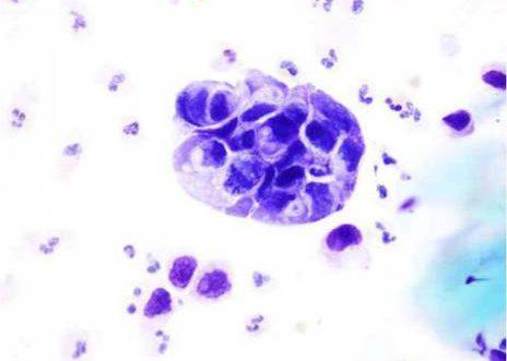 Orina de un caso de carcinoma pobremente diferenciado de vexiga. Acúmulo de células con núcleos grandes irregulares e alta relación núcleo citoplasma.