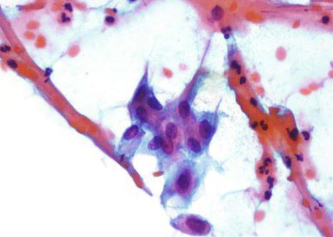 Metaplasia inmadura presentando proxeccións citoplasmáticas.