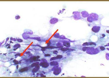 Cells forming intercellular lumena