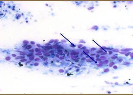 Intracytoplasmatic lumena in cuticular cell.