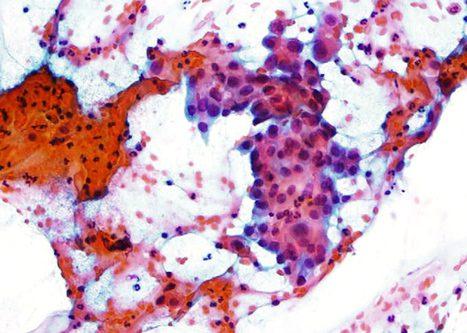 Células de morfoloxía escamosa inmadura con alta relación núcleo citoplasma. Núcleo grande con cromatina granular fina.
