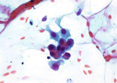 Células de metaplasia escamosa madura con discreta atipia con núcleo irregular algo agrandado.