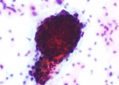 Células endometriais densamente tinguidas sen mostrar detalles precisos.
