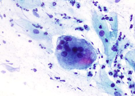 Multinucleated macrophages or giant cells are non-specific finding especially after the menopause.