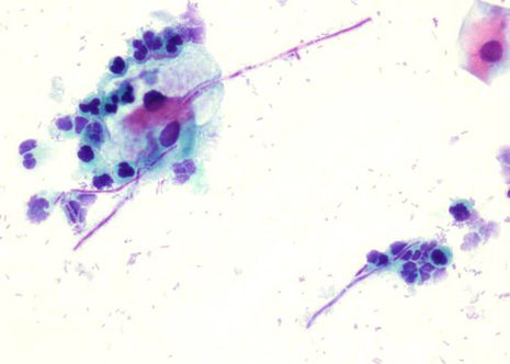 Mostra cervial con esporas e pseudohifas con lixeira inflamación en infección por Cándida Albicans.