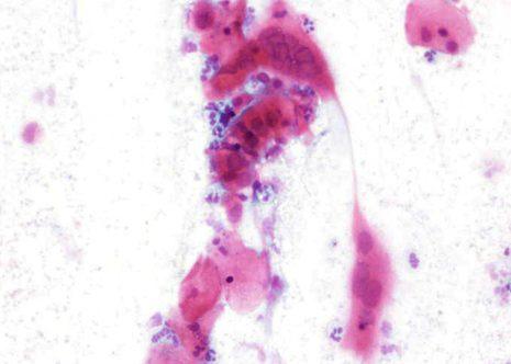 Mostra cunha infección por Herpes xenital con células bizarras.