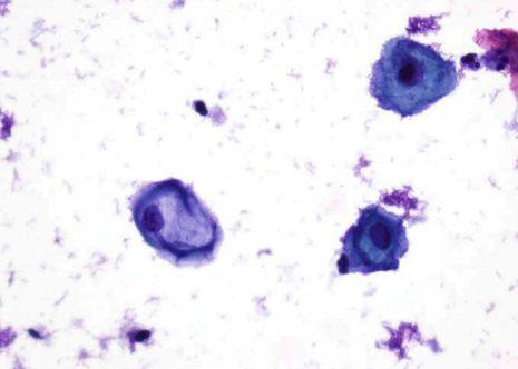 Coilocitos con amplo halo perinuclear e núcleo con agrandamento variabel.