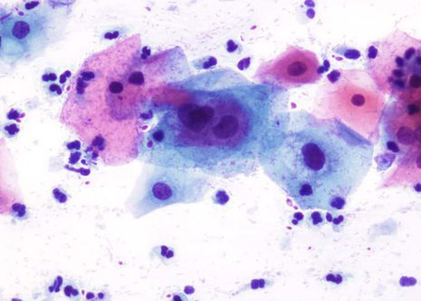 L-SIL. Cells of squamous type with slightly enlarged nuclei and some hyperchromasia.
