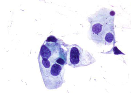 H-SIL. Los núcleos muestran variable hipercromasia patrón cromatínico anormal e irregularidades en el contorno nuclear.