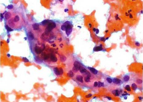 Carcinoma Escamoso. Nucleos con variabel forma e tamaño con patron cromatinico anormal.