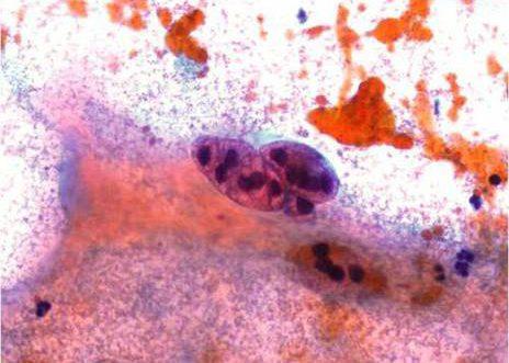Adenocarcinoma Endocervical. Acúmulos cellular con bordes redondeados e vacuolas secretorias.