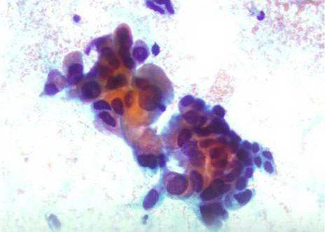 Adenocarcinoma Endocervical. Celulas endocervicais atípicas, con marcada variación no tamaño celular.